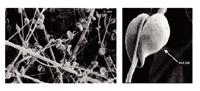 Blood Plasma Separation Filter